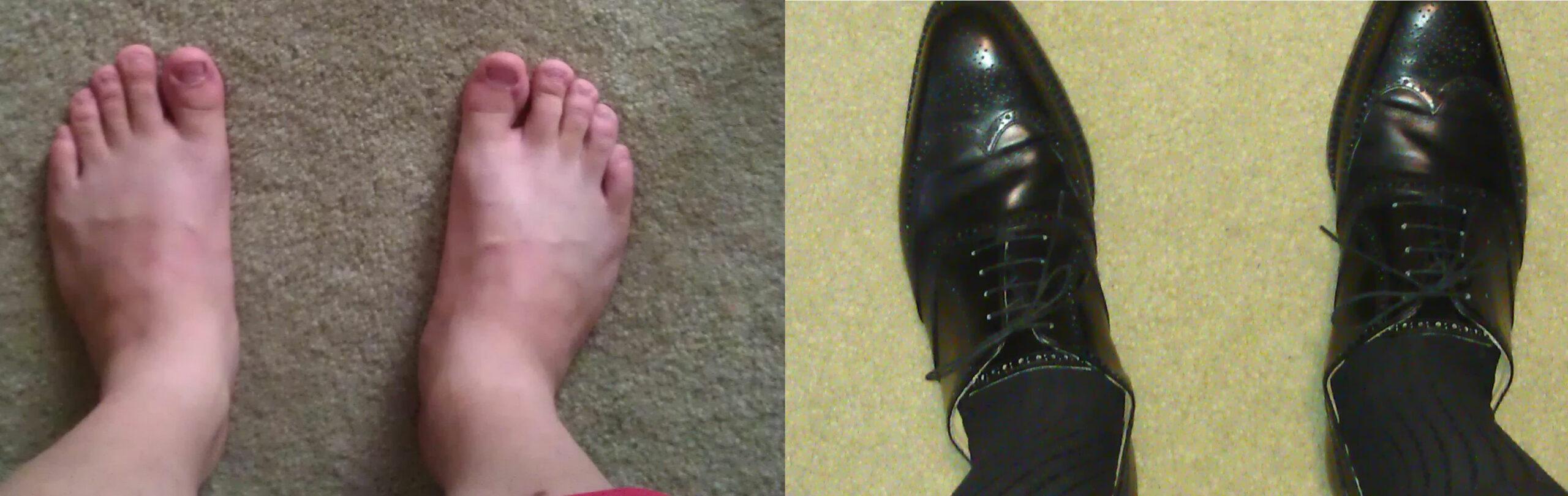 Une photo de qualité médiocre mais qui n'en reste pas moins une excellente illustration. L'inadéquation entre la forme du pied et le soulier choisi est criante. (Source : Styleforum)